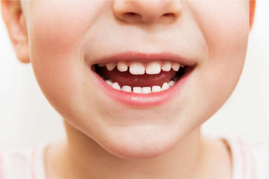 Closeup of a child with their baby teeth that are important to care for